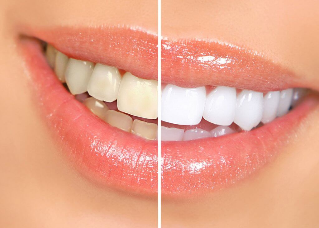 teeth whitening dentist sheffield